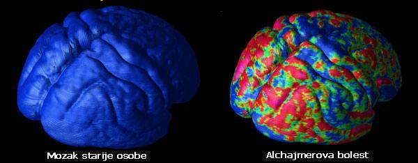Mozak starije osobe i alchajmerova bolest