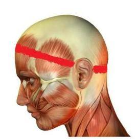 Tenzione glavobolje