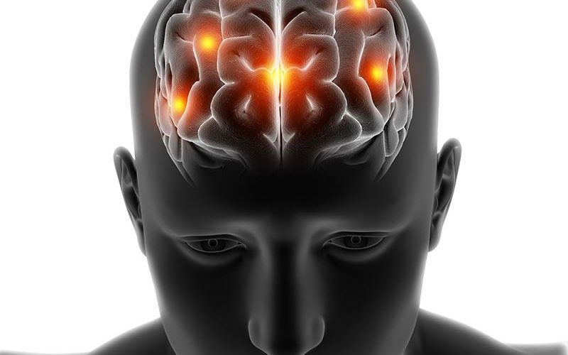 vaskularne-demencije