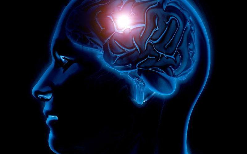 glavobolja-kod-sindroma-reverzibilne-cerebralne-mozdane-vazokonstrikcije