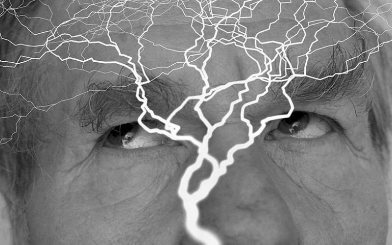 centat-za-epilepsiju