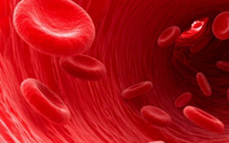 uradite-sistematski-pregled-krvnih-sudova-na-vreme