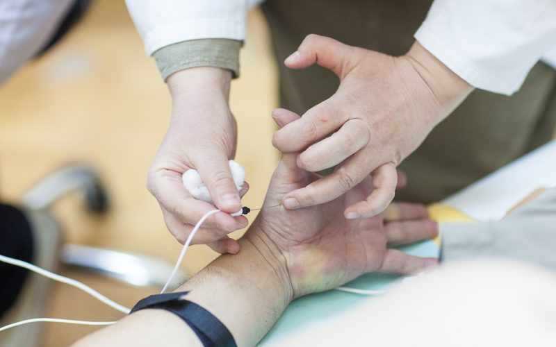 elektromioneurografija-emng-dijagnostika