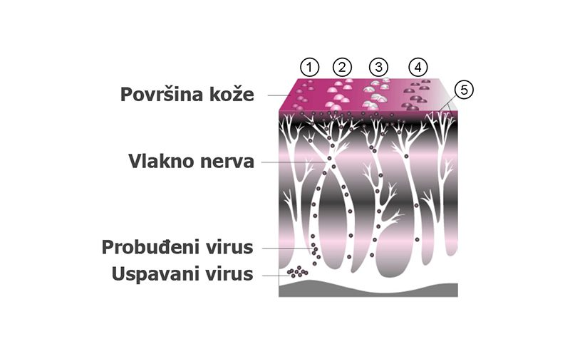 herpes_zoster