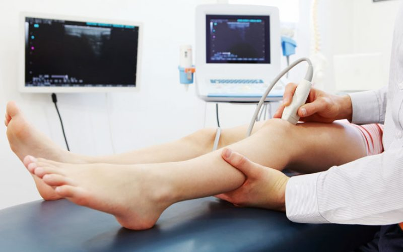 kolor-dopler-krvnih-sudova-nogu