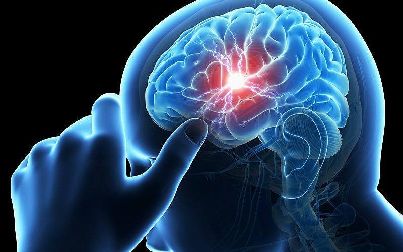 krvarenje-u-mozgu